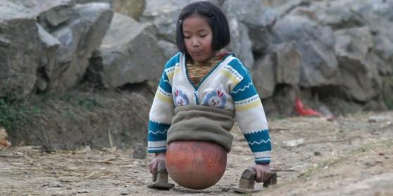 Image result for Djevojčica je izgubila obje noge u teškoj nesreći – 10 godina kasnije postala je milijunašica i oduševila cijeli svijet!