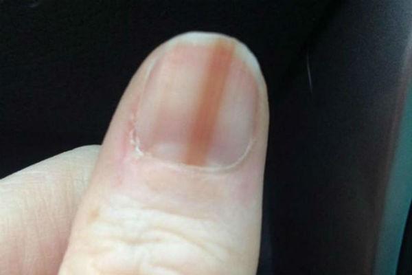 Crta na noktima je znak bolesti! - CURE.ba
